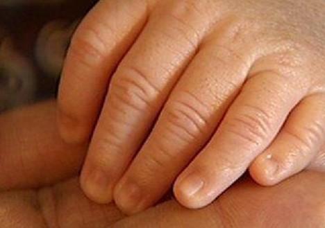 polydactyl hand 2